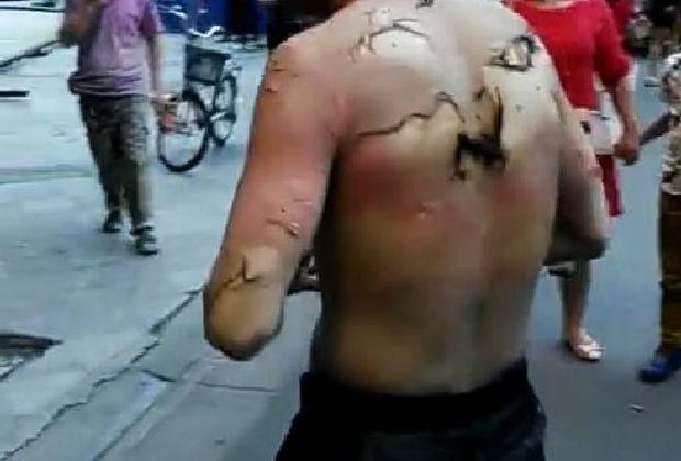 成都燃氣泄漏燃燒事件 造成13人受傷(圖)