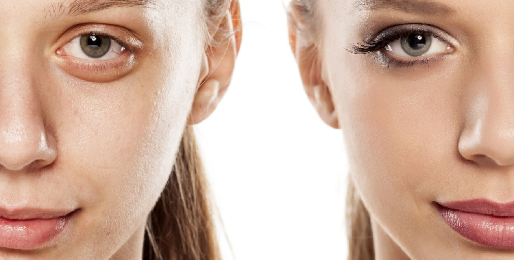 麦吉丽小银管:鲜活直达肌底 修护年轻
